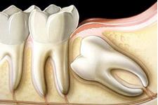 especialidade-dente-incluso