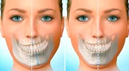 especialidade-ortognatica-assimetrias-faciais