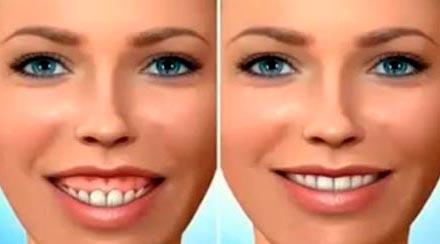 especialidade-ortognatica-excesso-maxilar
